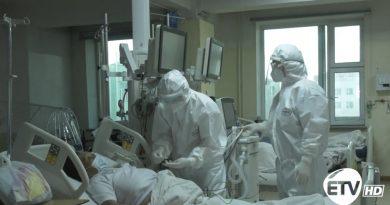 Ковидын халдвар авсан иргэдийн 14 хувь нь уушгины хатгалгаагаар хүндэрч байна.